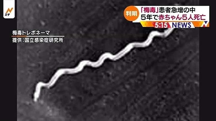 妊婦の「梅毒」感染で初調査、5年間で赤ちゃん5人が死亡 TBS NEWS