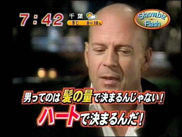 「ハゲ」新名称候補に「パゲ」「テカチュウ」「アタマ100%」「肌色男子」