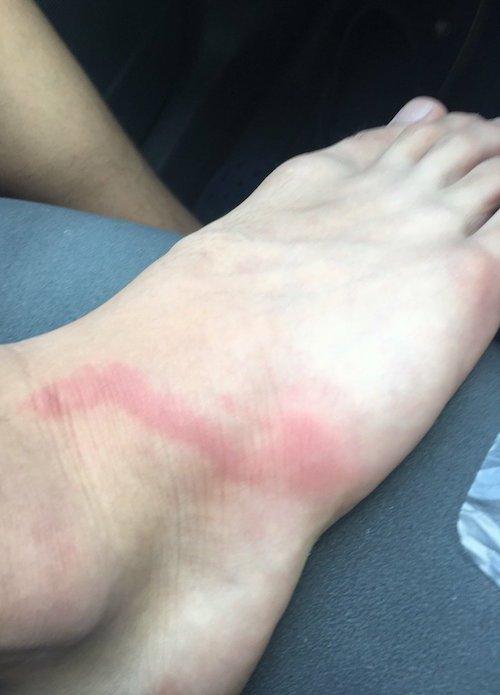 注意!虫に刺された場所から「赤い線」がのぼり始めたら、できる限り病院へ