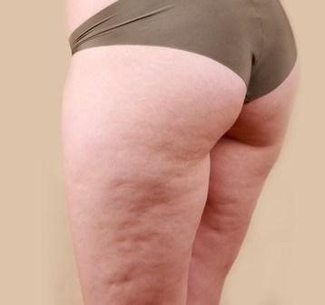 食品サンプル会社が作った「体脂肪モデル」を見て、節制を心がける人が続出