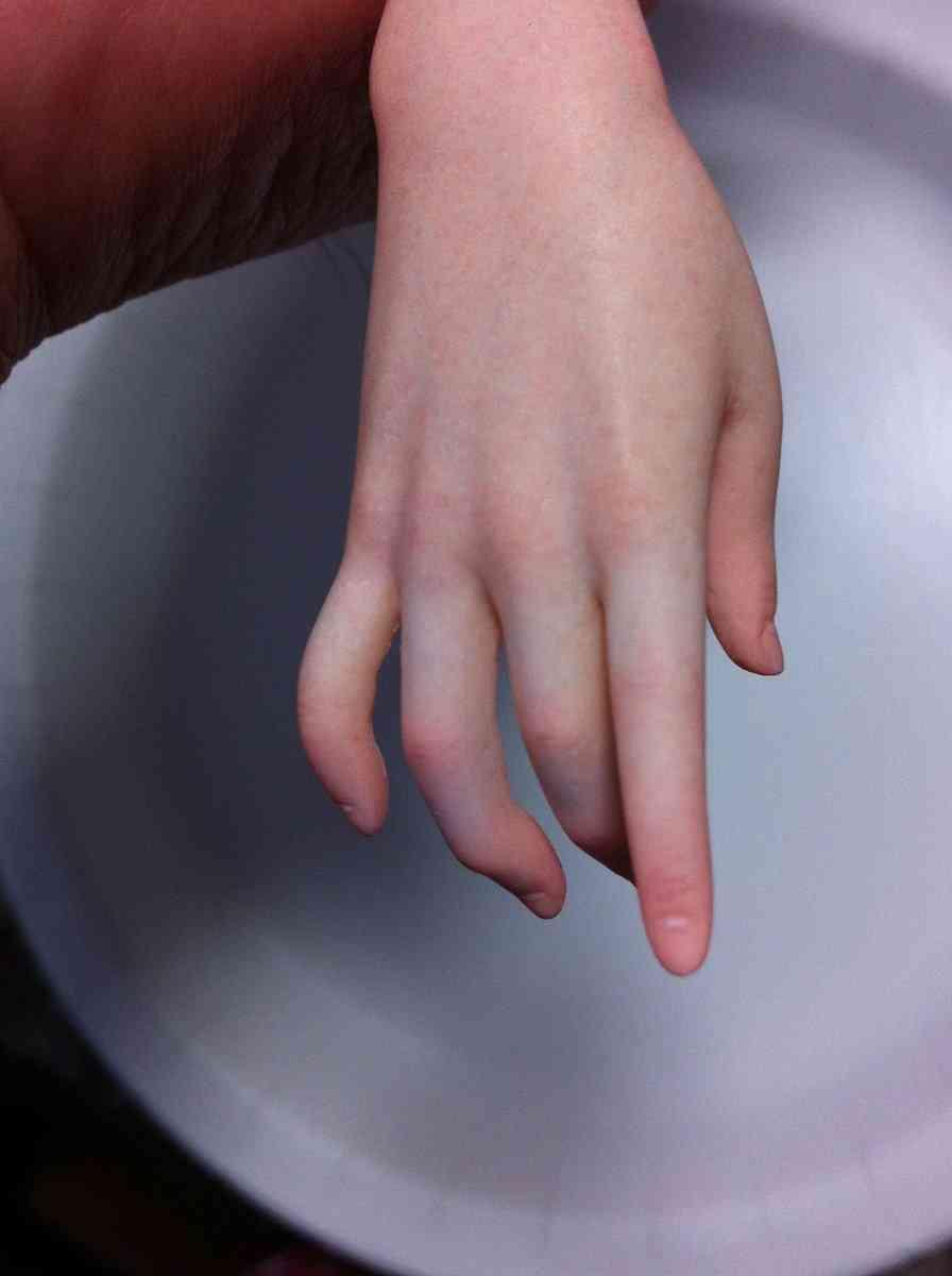 とある造形師が作った腕があまりにリアルすぎて困惑「一瞬理解できなかった」「完全に皮膚」