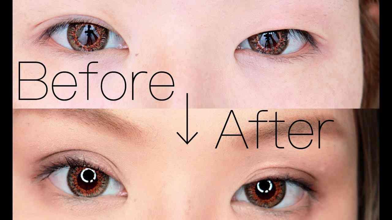 肌に優しい♥寝るだけて二重になった!非対称だった目が対称に!二重の作り方  - YouTube