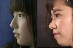 鼻高っ!2位柴咲コウ…同性が「鼻の形に憧れる芸能人」圧倒的1位は…