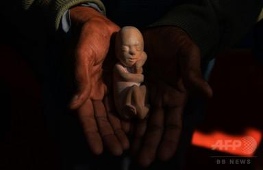 おじから暴行受け妊娠の10歳女児、中絶認められず出産 インド 写真1枚 国際ニュース:AFPBB News