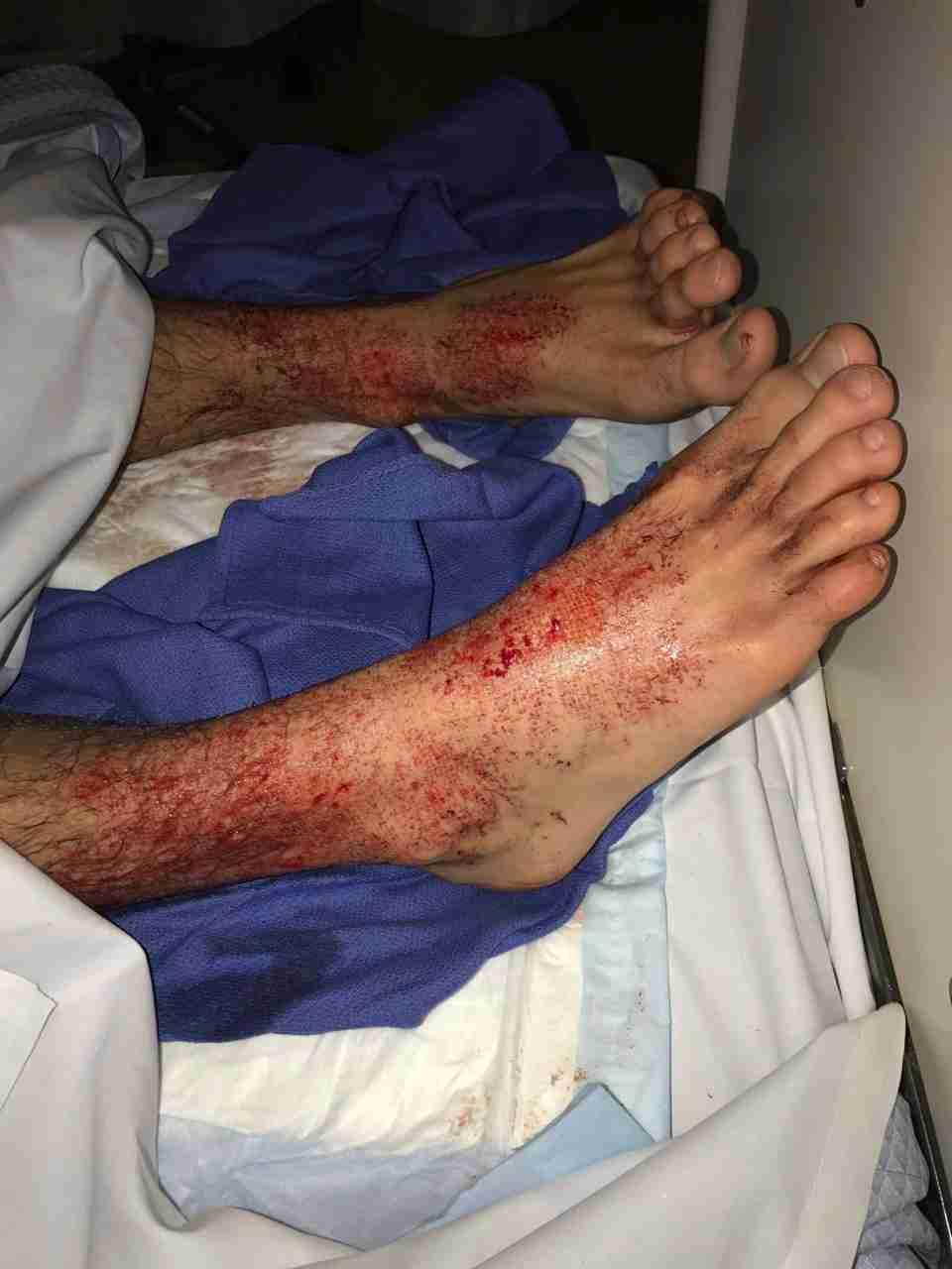 【閲覧注意】海に漬かって血だらけに、足に原因不明の無数の穴…オーストラリア