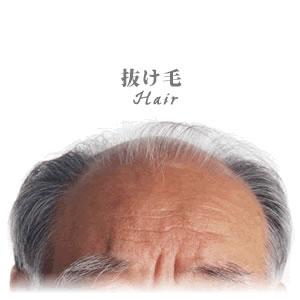 抜け毛が多い人