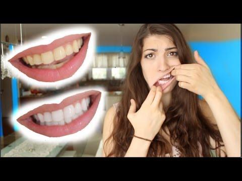 How to Whiten Teeth in 2 Minutes! [guaranteed whiten teeth] - YouTube