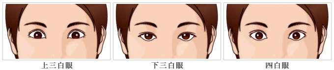 黒目の大きさについて
