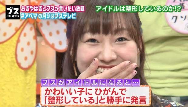 SKE48の須田亜香里がポロリ「整形しているメンバーもいる」 - ライブドアニュース
