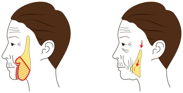 頬のたるみを解消する「バッカルファット」除去手術 | スキンケア大学