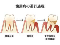 大切な歯を失わないためにも予防が肝心。今知っておきたい歯周病の原因と対策