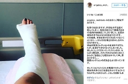 道端アンジェリカ、転倒して右足首骨折し手術へ 18日の関西コレクションはキャンセル
