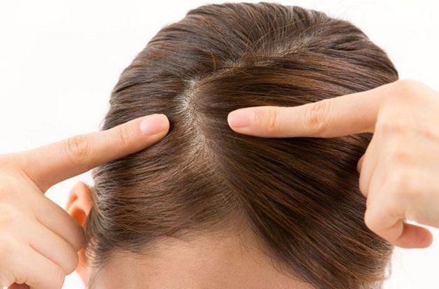 頭皮湿疹が定期的に出来る人