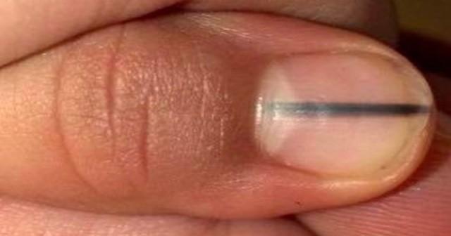 あるネイリストがお客の爪に浮かぶ黒い線を見てすぐに病院に行くように告げた理由がこちら!