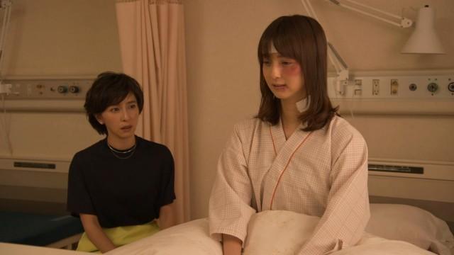 顔にアザの佐々木希、まるで別人…野島伸司ドラマの衝撃ビジュアル公開