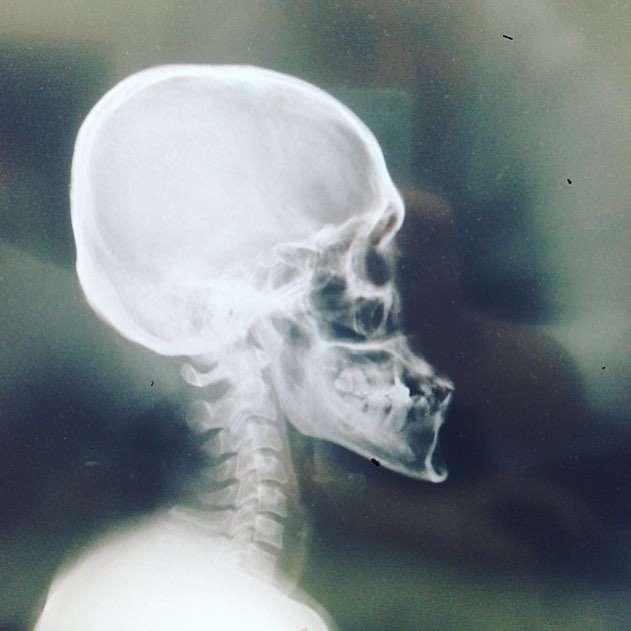 顎の先にフック!? 野生爆弾くっきーさんの頭部レントゲン写真がヤバい!