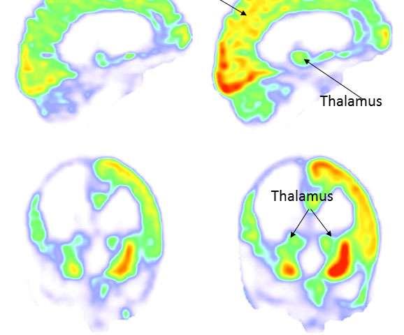 植物状態の男性…脳への電気ショックで15年ぶりに目覚める フランス