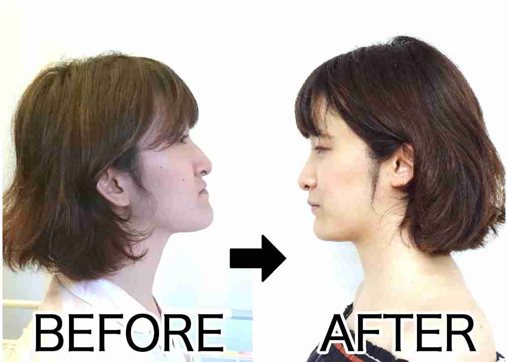 顔を変えなければいけない「顎変形症」の壮絶な手術と術後のガチ体験記【美容整形ではなく歯列矯正】