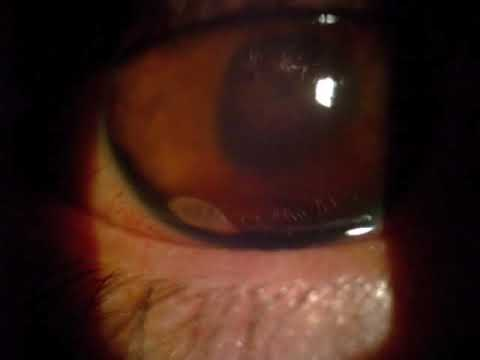 A Trematode Observed on Slit-Lamp Examination of the Eye - YouTube