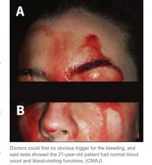 【超閲覧注意】血の汗を流す女性に「最も珍しい症例」と医師困惑(伊)