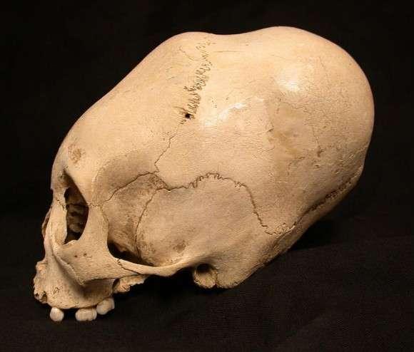 まるでエイリアン。かつて世界各地で行われた人工頭蓋変形、その歴史と意義(※閲覧注意) : カラパイア