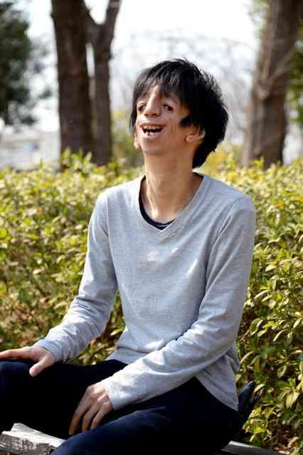 顔ニモマケズ、僕は生きる 内面好きと言ってくれた彼女:朝日新聞デジタル