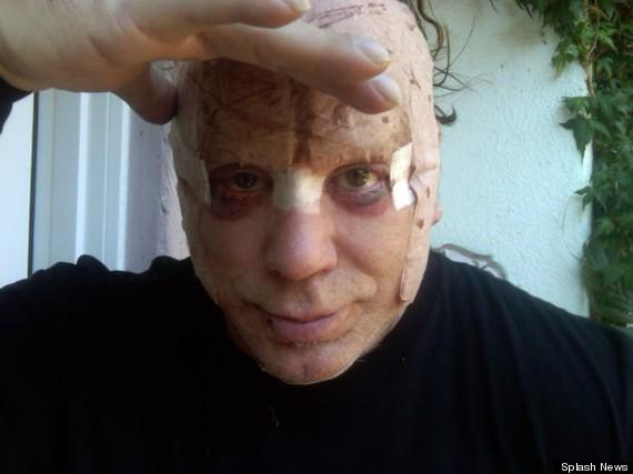 【閲覧微注意】ミッキー・ロークがまた整形 手術直後の写真を公開