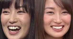 「歯並び悪い=育ちが悪い」という風潮は何故?