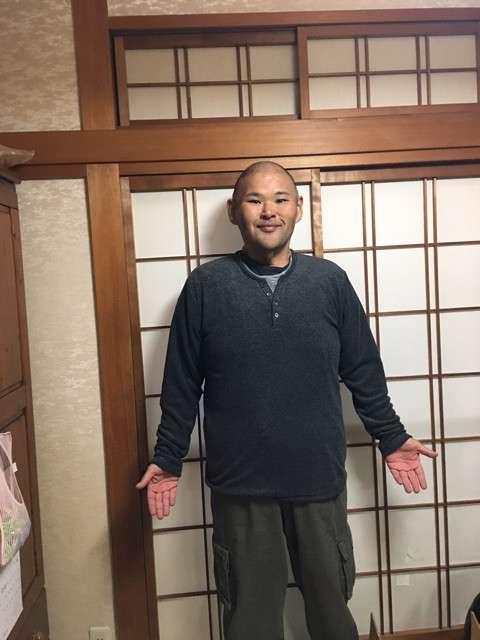 【もはや別人】安田大サーカスのHIROさん、激痩せで小学3年生時の体重に戻る