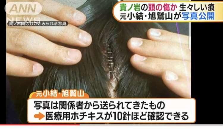 貴ノ岩関の頭の傷か 元小結・旭鷲山が写真公開