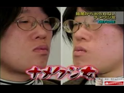 【整形】ナメクジ女と呼ばれた女性が超可憐に大激変! - YouTube