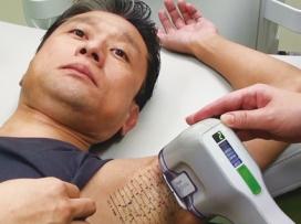 切らない超音波+ミラドライ【両ワキ】 共立美容外科・皮膚科 銀座院のメニュー