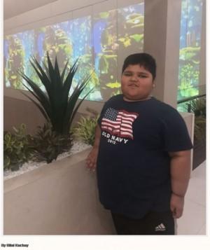 7歳で体重120kg パキスタンの男児、胃切除手術で減量にチャレンジ<動画あり>