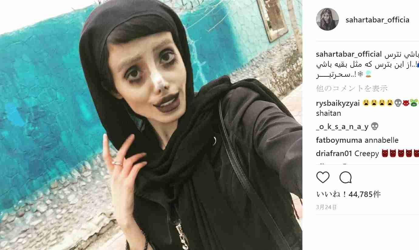 【海外発!Breaking News】アンジェリーナ・ジョリーに憧れ50もの整形を繰り返した19歳女性(イラン)   Techinsight(テックインサイト) 海外セレブ、国内エンタメのオンリーワンをお届けするニュースサイト