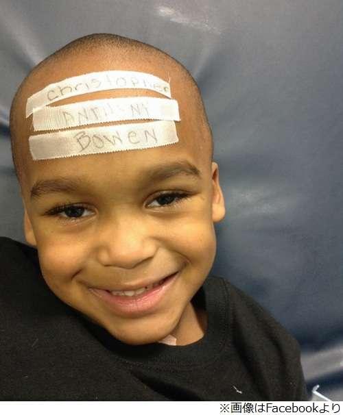 健康体なのに13回も手術された少年、母が強要