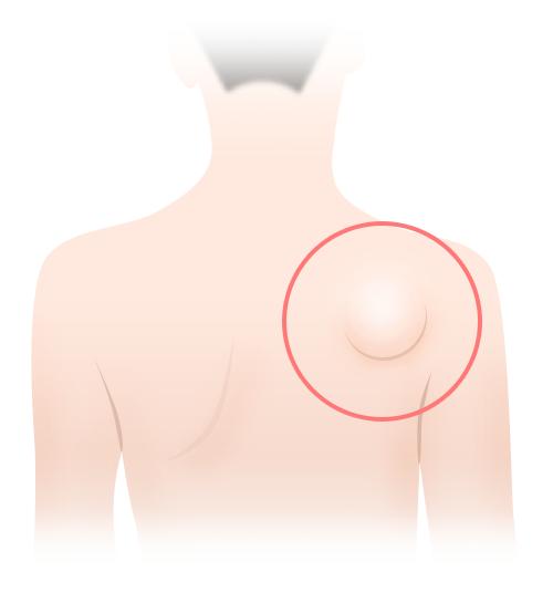 脂肪腫(リポーマ)とは ~原因や症状をイチから解説~ | アイシークリニック新宿院