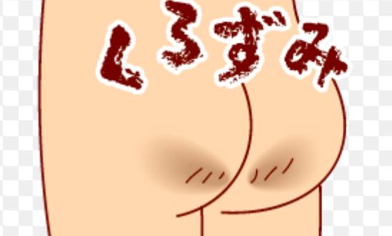 お尻の黒ずみの原因とは?気になる方必見!お尻の黒ずみをなくす対策をご紹介!! | 100テク
