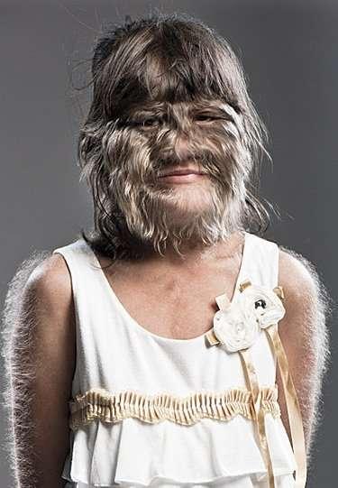 世界で最も毛深い少女、17歳になり結婚して幸せに(タイ)