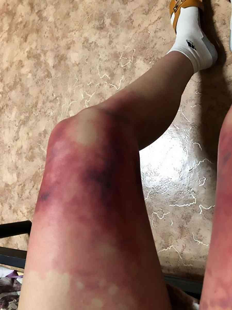 【閲覧注意】マイナス40度でミニスカートを履いていた女子大生の脚がとんでもないことに…