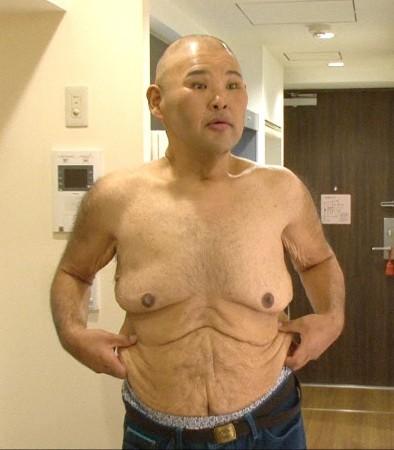 HIRO、135キロから93キロへ 激やせ姿をテレビ初公開