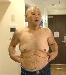 HIRO、135キロから93キロへ 激やせ姿をテレビ初公開― スポニチ Sponichi Annex 芸能