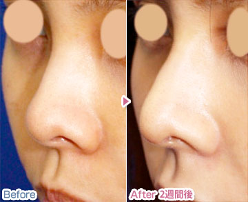 鼻が低い・丸いと美人にはなれないですか?