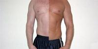 肌を黒くしたい人たちが乱用:「メラニンを増やす薬」が臨床試験へ - ライブドアニュース