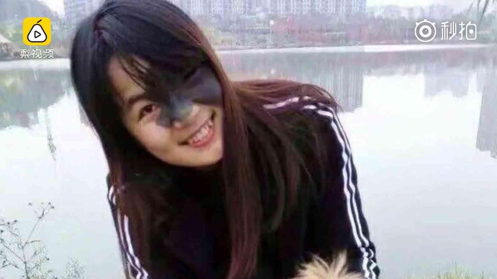 【超閲覧注意】23歳の美女、シミ跡治療のために顔を風船のように膨らますハメに 「ひょうたん女」と中国で話題に