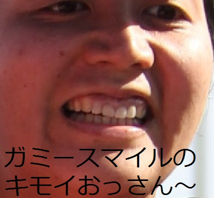 歯列矯正後の顔の変化