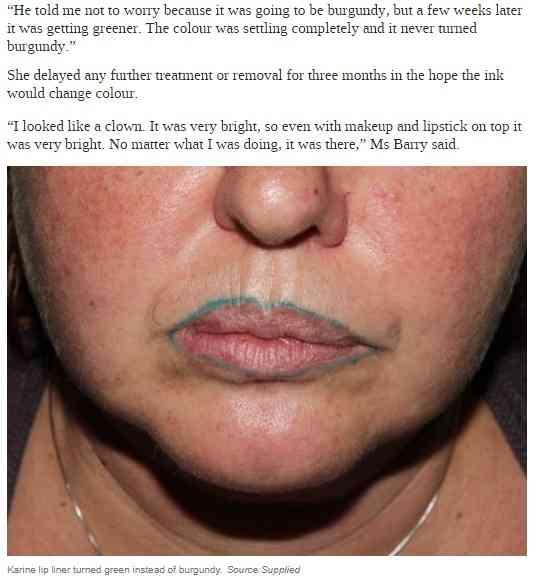 ずさんな豊唇タトゥーで輪郭にグリーンの線 豪女性、海外での施術を後悔