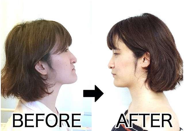 歯医者さんで美容整形?顔が変わる「顎変形症」手術の体験記 - Peachy - ライブドアニュース