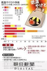 「低温やけど」にご用心 エコな湯たんぽも注意:朝日新聞デジタル