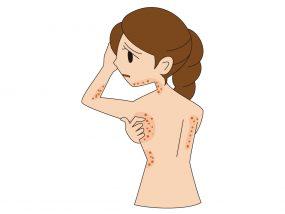 アトピー性皮膚炎の方。