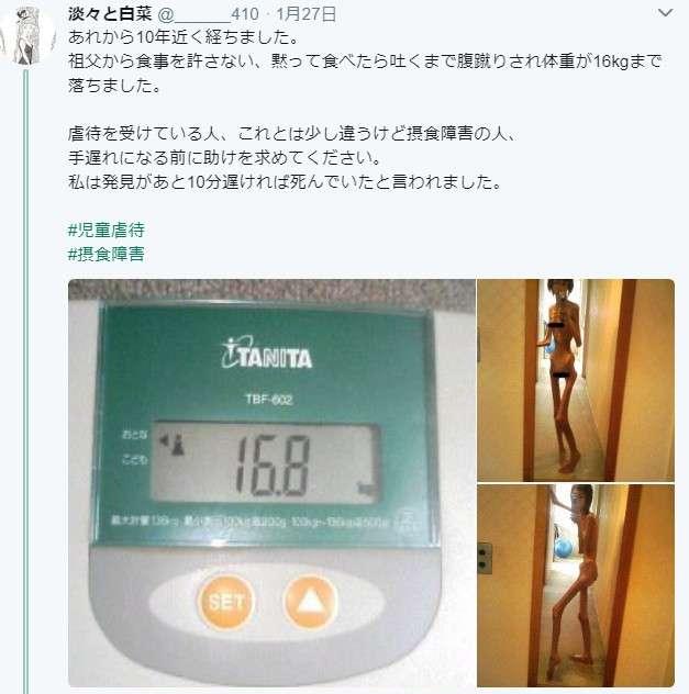 家族から食事を許されず餓死寸前だった日本人女性に海外から怒りと驚きの声「こんな目に遭わせる理由はいったい何なんだ」